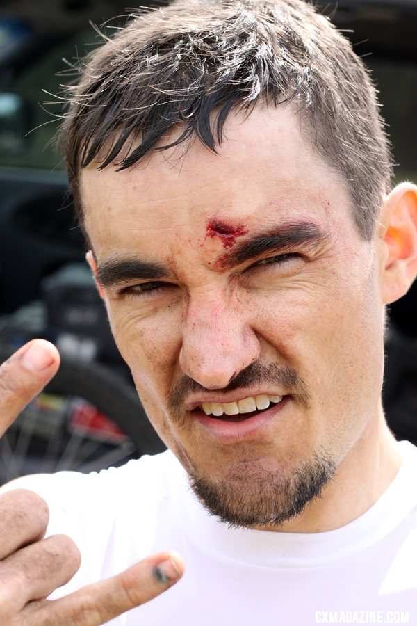 The course took its toll, giving this Cat 4 racer some battle scars after he collided with a racer who crashed in front of him. © Cyclocross Magazine