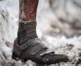 Many got not only dirty but bloody. © Meg McMahon