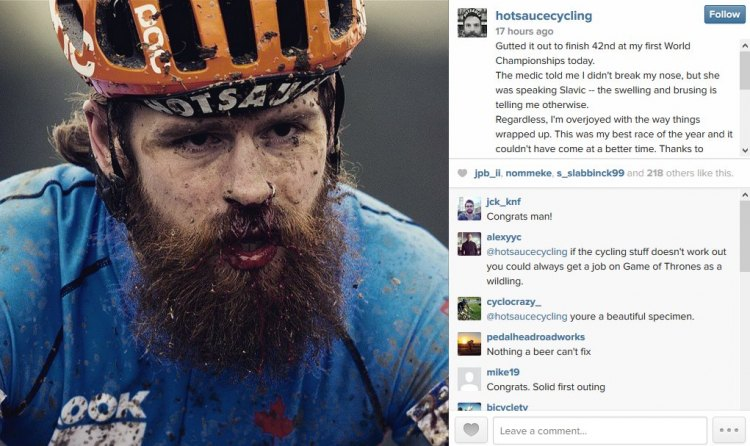 Mark McConnell shared an instagram with the Tabor course looking like it punched him in the nose. Photo credit Michal Svacek