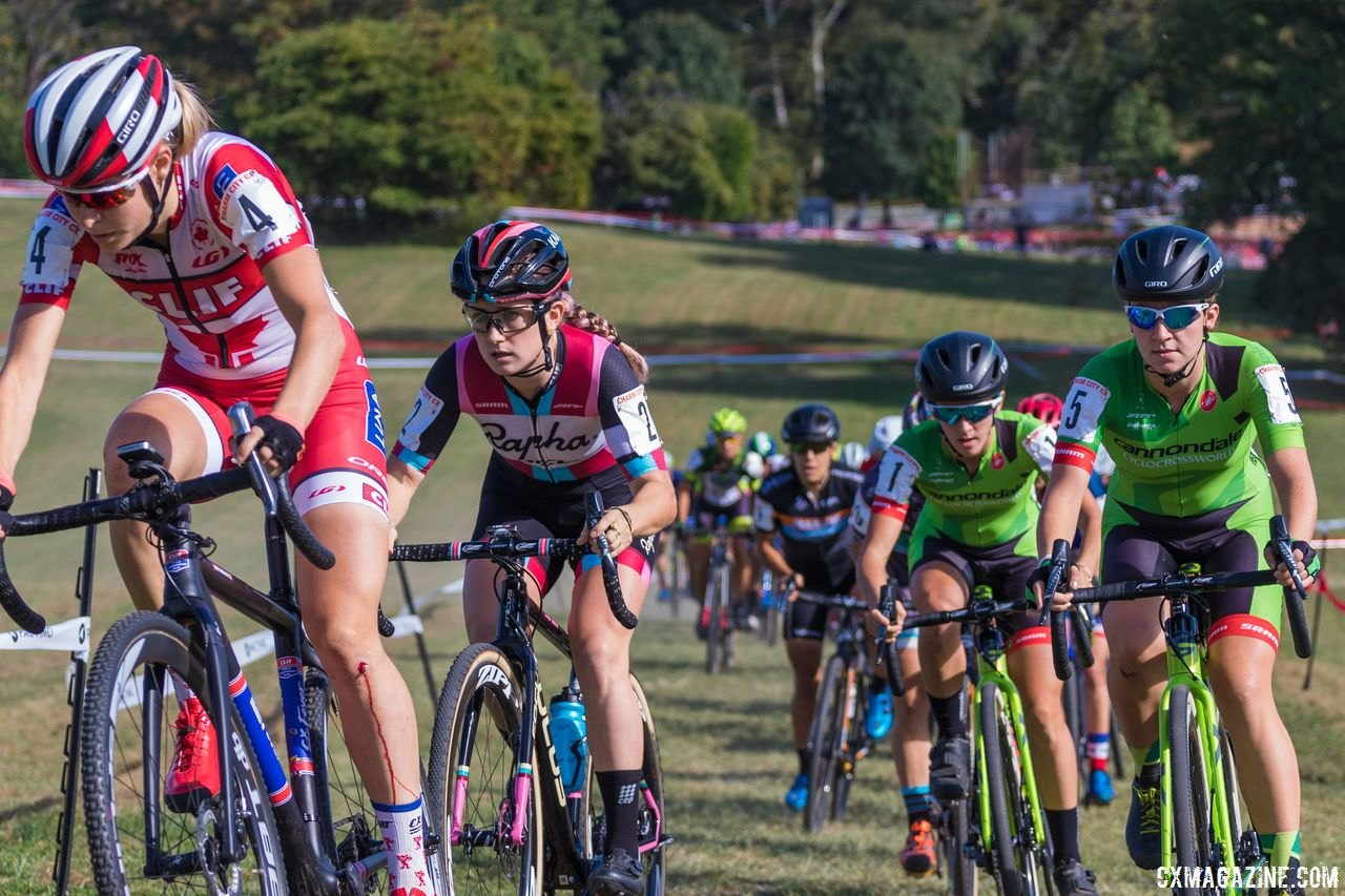 Charm City CX is providing an opportunity for U23 Women to race for free in 2018. 2017 Charm City Cross Day 1 © M. Colton / Cyclocross Magazine
