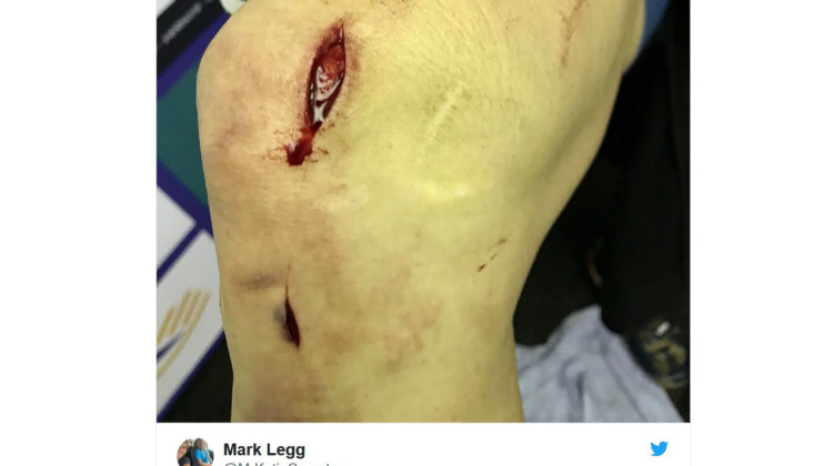 Katie Compton cut by a disc brake rotor in Lille. photo: Mark Legg Compton